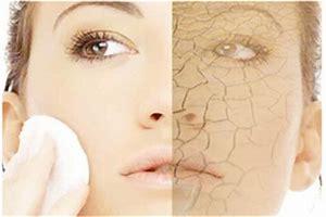 ストレス乾燥カサカサ肌を解消する方法